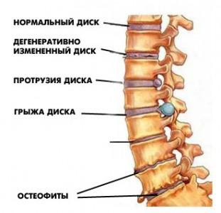 Диагностика и лечение грыжи диска,   грыжи Шморля