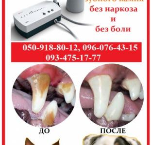 Ультразвуковая чистка зубов у собак и кошек
