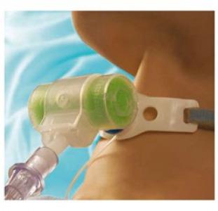 """ФИЛЬТР """"Искусственный нос""""для трахеостомы тепло-влагообменный для ИВЛ Hydro-Trach ІІ"""